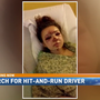 Hit-and-run leaves 15-year-old girl almost dead