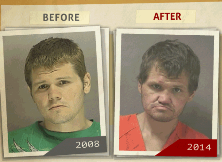 Side-by-side 2008 and 2014 photo taken of  man who reportedly had a 'principal to sale of methamphetamine ' charge. (Photo, info from rehabs.com/)