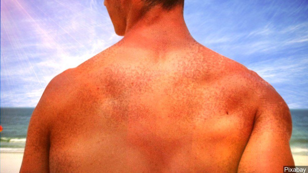 Nevada ranked among states with lowest rate of skin cancer - News3LV thumbnail