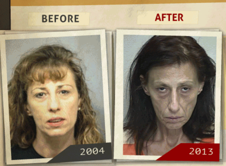 Side-by-side 2004 and 2013 photo taken of woman who reportedly had a 'possession of cocaine' charge. (Photo, info from rehabs.com/)