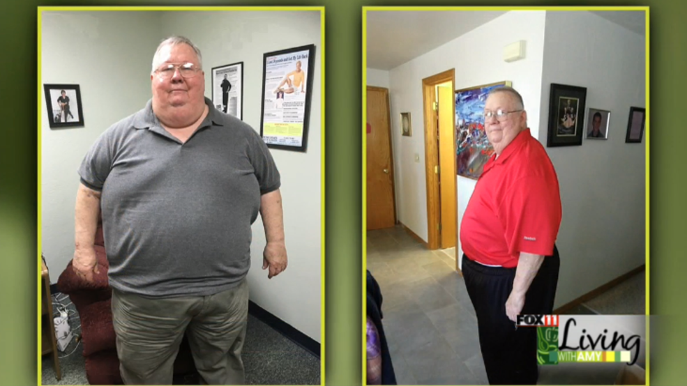 Advanced medical weight loss st louis