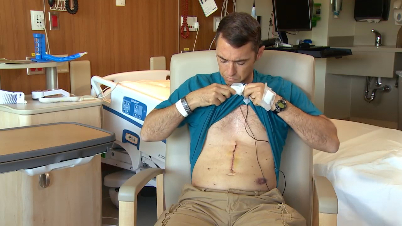 A scar will be a reminder to Trevor Hill of his donation to Hudson. (Photo: KOMO News)<p></p>