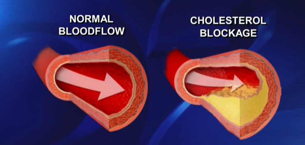 Heart disease is the number one killer of both men and women in the United States. This is why knowing if you have high cholesterol is so important. (Photo: KUTV)